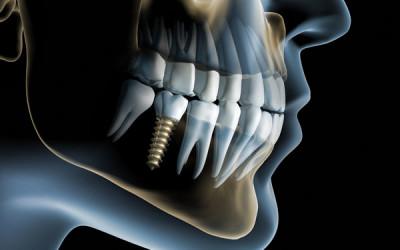 Avances en Implantología